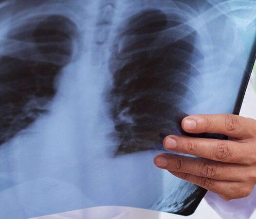 8 de Noviembre. Día Mundial de la Radiología y del Técnico Radiólogo